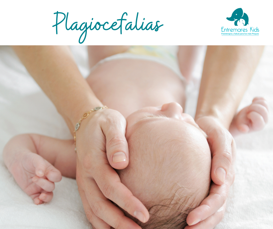 plagiocefalias